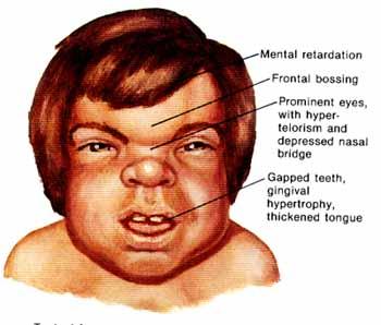 Syndrome de Hurler